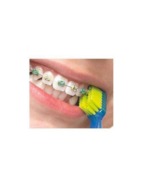 Tandenborstel Ultra soft Ortho 1 stuks Curaprox